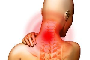 Что такое шейный остеохондроз