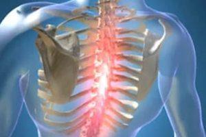 Межреберный остеохондроз