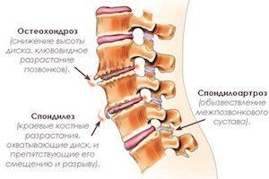 Чем отличаются остеохондроз и спондилез