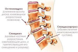 Остеохондроз и спондилоартроз поясничного отдела позвоночника