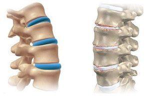 Можно вылечить остеохондроз в запущенной форме