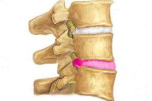 Ультразвуковая терапия поясничного отдела thumbnail