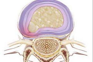 Заболевания схожие с грыжей позвоночника