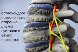 Может болеть желудок при остеохондрозе