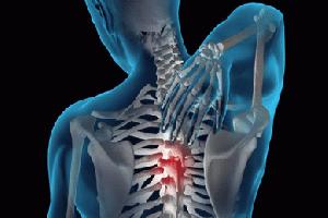 Как образуется грыжа в грудном отделе