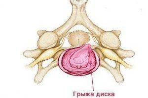 Как развивается грыжа грудного отдела