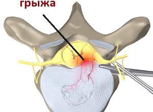 Операция по удалению грыжи грудного отдела