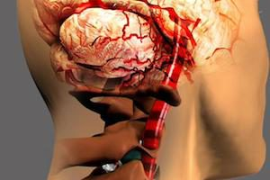 Как связаны инсульт и остеохондроз