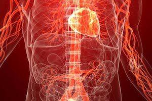 Как связаны артериальное давление и межпозвонковая грыжа