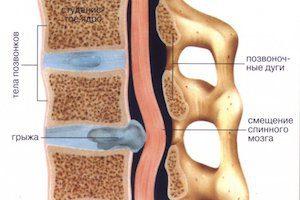 Разрыв пульпозного ядра в грудном отделе