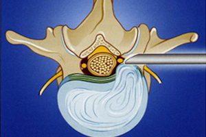 Лечение грыжи диска Th8-Th9