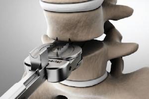 Установка имплантов на позвонке