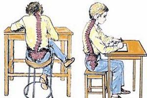 Как укрепить мышечный корсет позвоночника