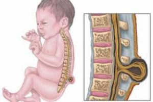Грыжа спинного мозга у новорожденных