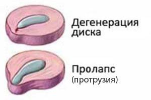 Пролапс диска