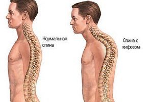 Кифоз спины