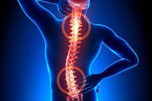 Симптомы протрузии позвоночника