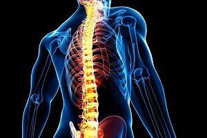 Субхондральный остеосклероз позвоночника