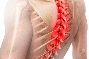 Радикулопатия грудного отдела