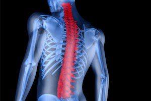Жировая дистрофия костного мозга