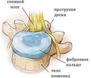 Протрузия позвоночника и плоскостопие