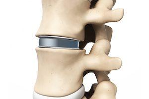 Титановые имплантанты