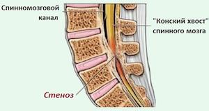 Причины приобретенного стеноза позвоночника