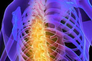 Дегенерация грудного отдела позвоночника